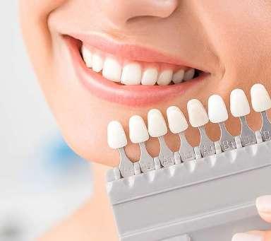 dental-veneers-and-dental-laminates-header