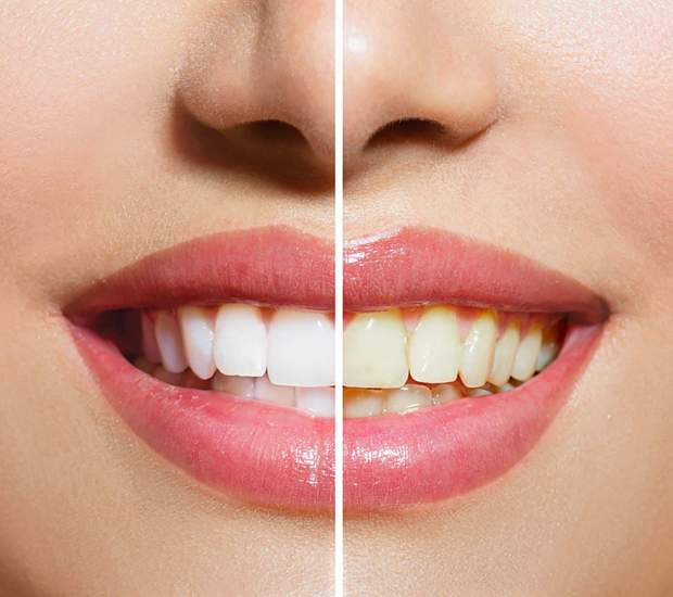 00_Teeth_Yellow-Teeth-Are-Actually-Stronger-Than-Bright-White-Teeth–Here's-Why_167843159-Subbotina-Anna